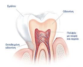 Οδοντική Ευαισθησία