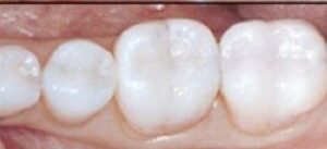 Αισθητική – Οδοντική Χειρουργική