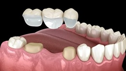 Οδοντική Προσθετική